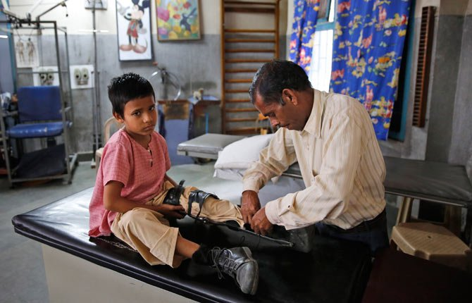 An Indian man puts on an orthoses on his polio-affected boy Manish, 8, at a physical rehabilitation center in New Delhi, India Thursday, March 27. The World Health Organization has formally declared India polio-free, with no new case of the disease detected in the country in the past three years.