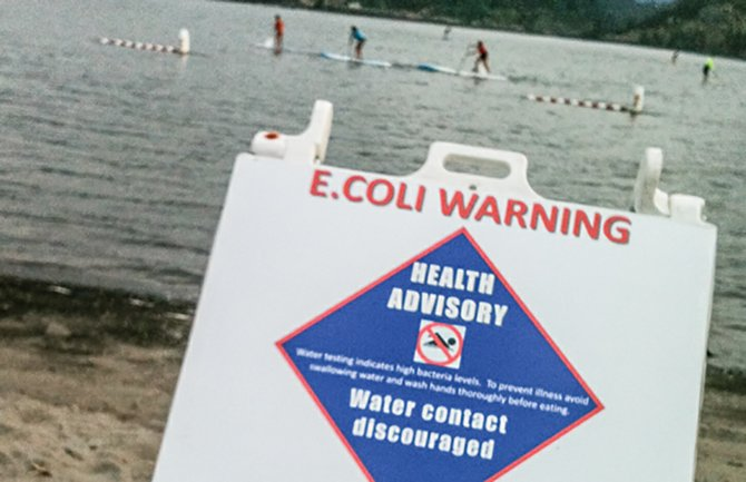 Sign warning beach users of potential for E. Coli posted at Waterfront Park Beach on August 14, 2014